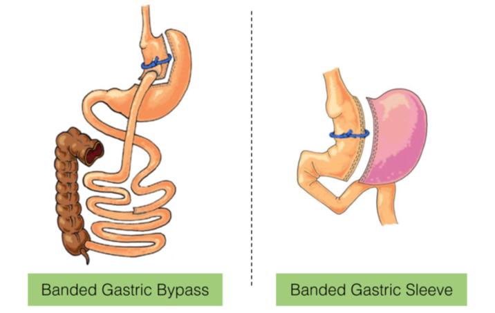 Verbeteren van chirurgische technieken in de bariatrie